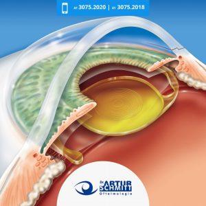 cirurgia-para-os-olhos