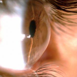 oftalmologista para ceratocone
