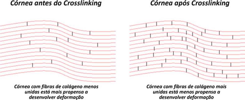 crosslinking para ceratocone