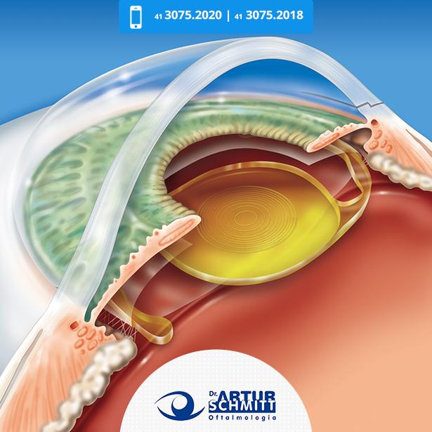 lente-multifocal-para-catarata-em-curitiba-2