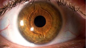 lente-intraocular-para-catarata