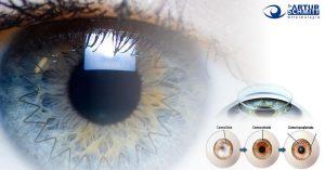 transplante-de-cornea-e-crosslinking-para-ceratocone-2