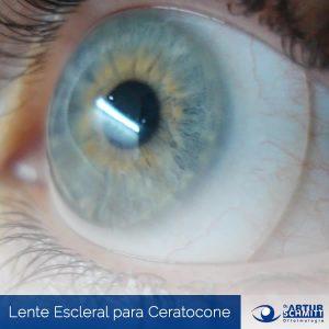 tratamento-ceratocone-curitiba-com-lente-escleral