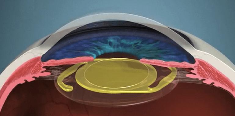 lente-intraocular-fixada-no-lugar-do-cristalino-cirurgia-de-catarata-em-curitiba