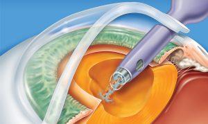 ponteira-do-faco-emulsifacador-aspirando-a-catarata