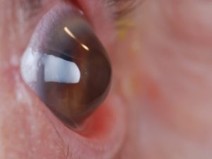 opcoes-tratamento-ceratocone