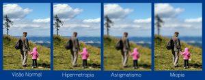 cirurgia-refrativa-para-miopia-hipermetropia-e-astigmatismo-em-curitiba