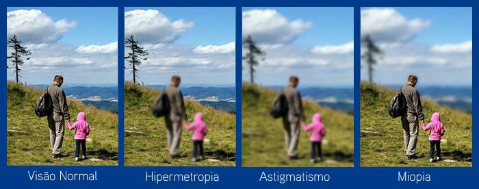Cirurgia refrativa para miopia, hipermetropia e astigmatismo em Curitiba