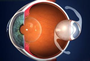 lente-intraocular-na-cirurgia-de-catarata-em-curitiba-300x203