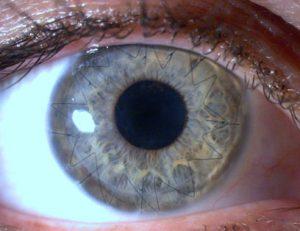 transplante-de-cornea-curitiba-3