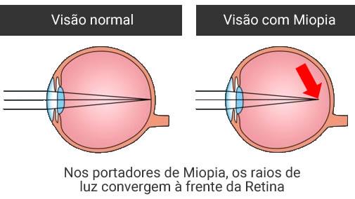 tratamento de miopia em curitiba