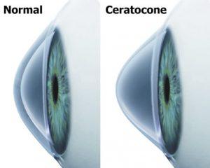 tratamento-e-cirurgia-de-ceratocone-em-curitiba