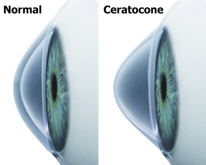 tratamento e cirurgia de ceratocone em curitiba