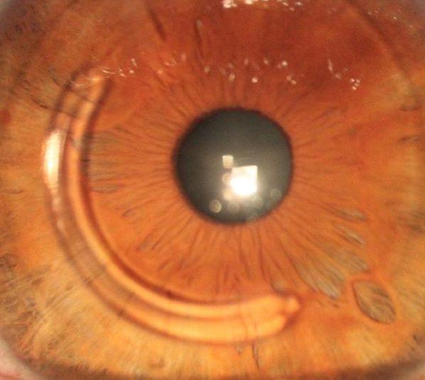 anel de ferrara em curitiba para tratamento do ceratocone
